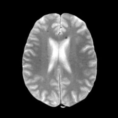 Gradient-echo MRI demonstrates multiple, bilateral