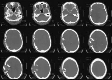 Axial brain and bone-window computed tomography sc