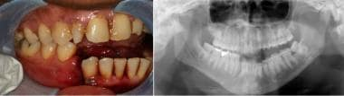 Mandibular fracture. Courtesy of Arthur K. Adamo,