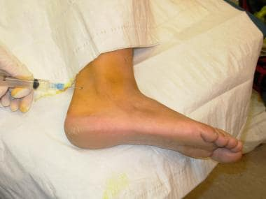 Advance the needle toward the lateral malleolus.