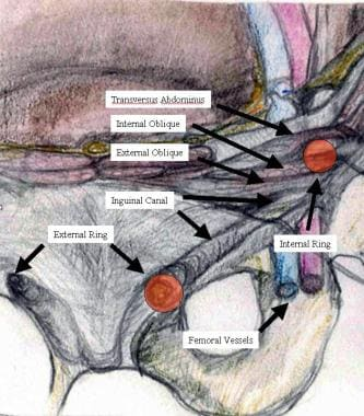 Anatomy of inguinal canal.