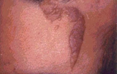 Linear type of nevus sebaceus.
