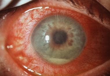 Acute anterior uveitis with plasmoid aqueous and h