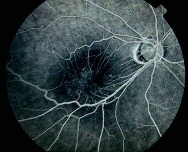 Fluorescein Angiogram Demonstrating Retinal Vascul