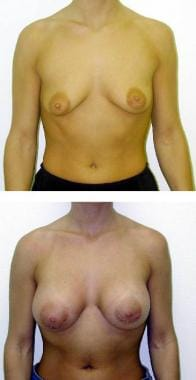 (Above) Preoperative view of 26-year-old woman wit