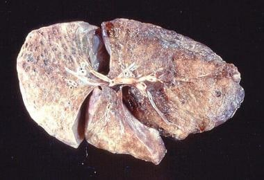 Gross pathology of advanced emphysema. Large bulla