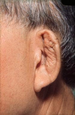 Close-up view of same patient as in Image 6. Forwa