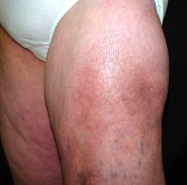 Calcifying panniculitis in patient with dermatomyo