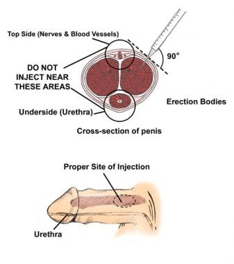Erectile dysfunction. This diagram depicts a cross