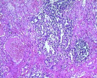 Histology of a lung abscess shows dense inflammato