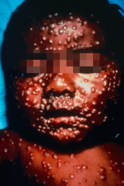 Unvaccinated infant with centrifugally distributed