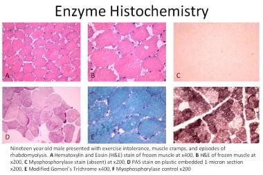 Enzyme histochemistry of 19-year-old male with McA