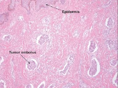 Histologic section of an inflammatory breast cance