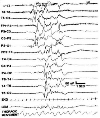 Paroxysmal or burst suppression EEG. Notice promin