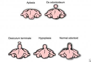 Gradations of the odontoid process's appearance.
