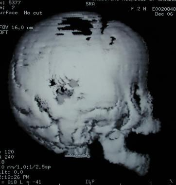 Craniosynostosis management. Lateral view of 3-dim
