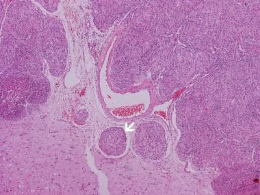 Image 17:Atypical meningioma typically invades the