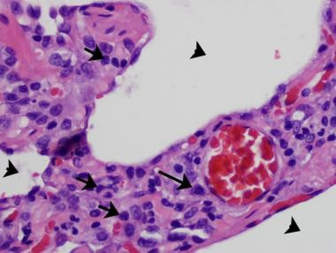 A 46-year-old man with hypersensitivity pneumoniti