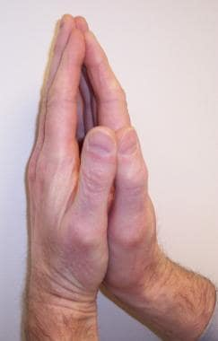 "A positive ""prayer sign"" can be elicited on examin"