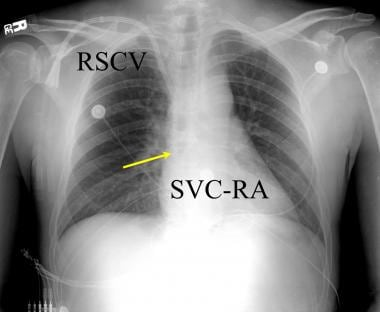 Anteroposterior chest radiograph in a renal transp
