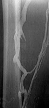 Lower-extremity venogram shows a nonocclusive chro