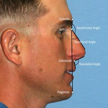 Common nasal angles used for lateral view nasal as