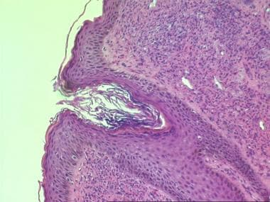 Histologic findings in granuloma faciale include a