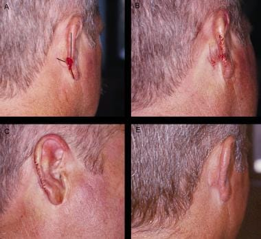 O-to-T advancement flap. Panel A: Defect with inci