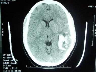 Computed tomography (CT) scan demonstrates a left