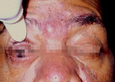 Typical dermatologic findings of rosacea, includin