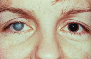 Fuchs heterochromic iridocyclitis with cataract an