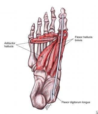 Plantar muscles that contribute to deforming force