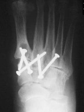 In this postoperative anteroposterior radiograph d
