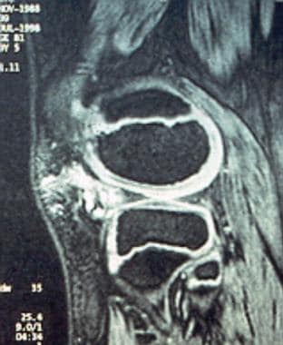 MRI of a pedunculated synovial hemangioma of the k