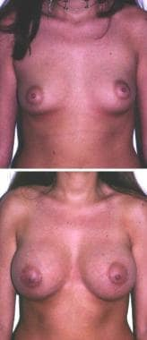 (Above) A 24-year-old woman with an A-cup breast.