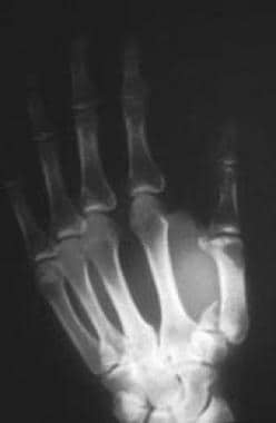 Rolando fracture - There is intra-articular commin