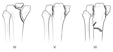 Tibial plateau fractures. Line drawings of Schatzk