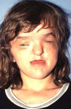 Frontal view of a patient with Apert syndrome. Not