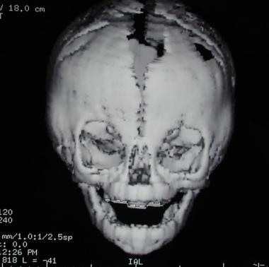 Craniosynostosis management. Frontal view of a 3-d