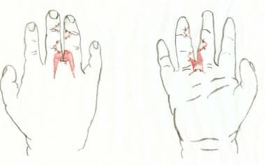 After division of syndactyly, with flaps inset. Sk