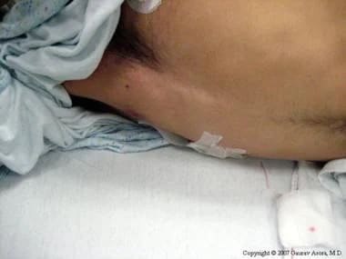 Patient lying on right side.