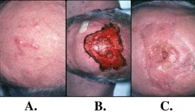 Split-thickness skin grafting. A: Merkel cell carc