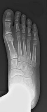 Anterior-posterior weight-bearing radiograph of fo