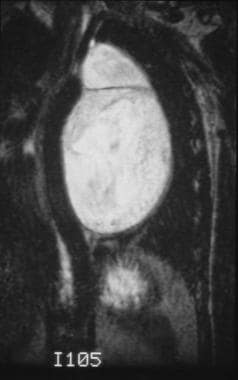 This coronal T2-weighted image demonstrates a well