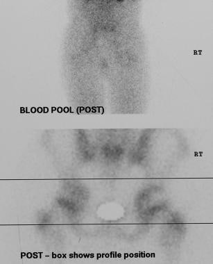 Legg-Calvé-Perthes disease. Zoomed images of the s