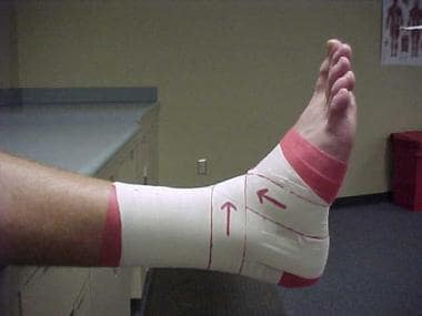 Ankle taping and bracing. Figure of 8.