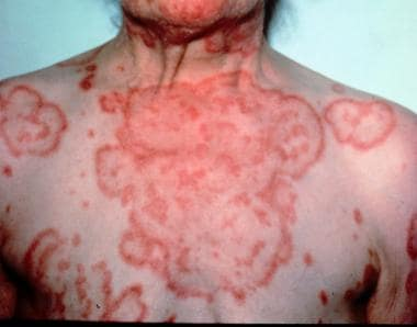 Erythema gyratum repens. The characteristic wood-g
