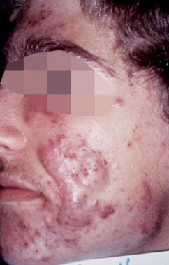 Acne, grade IV; multiple open comedones, closed co