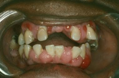 Enlarged upper and lower gingival mucosa in a part