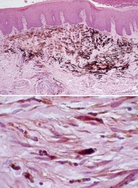 Disorders of Oral Pigmentation: Background, Pathophysiology
